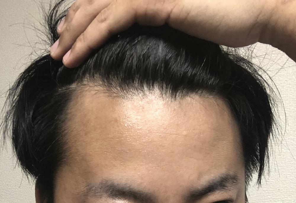 男性の髪とAGAについて