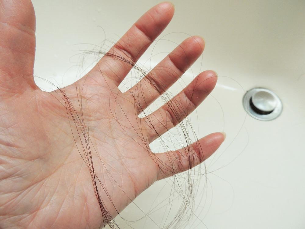 抜け毛と薄毛