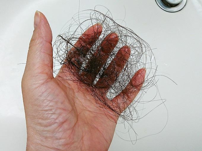抗がん剤による脱毛